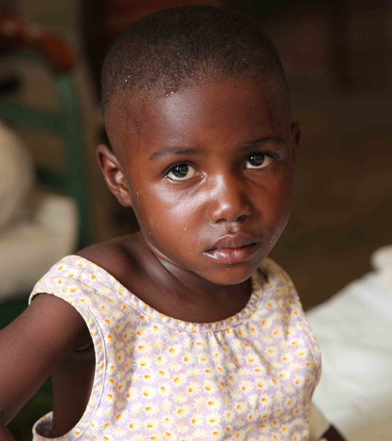 Et kongolesisk jentebarnsom får medisinsk behandling ved lokale sykehus.